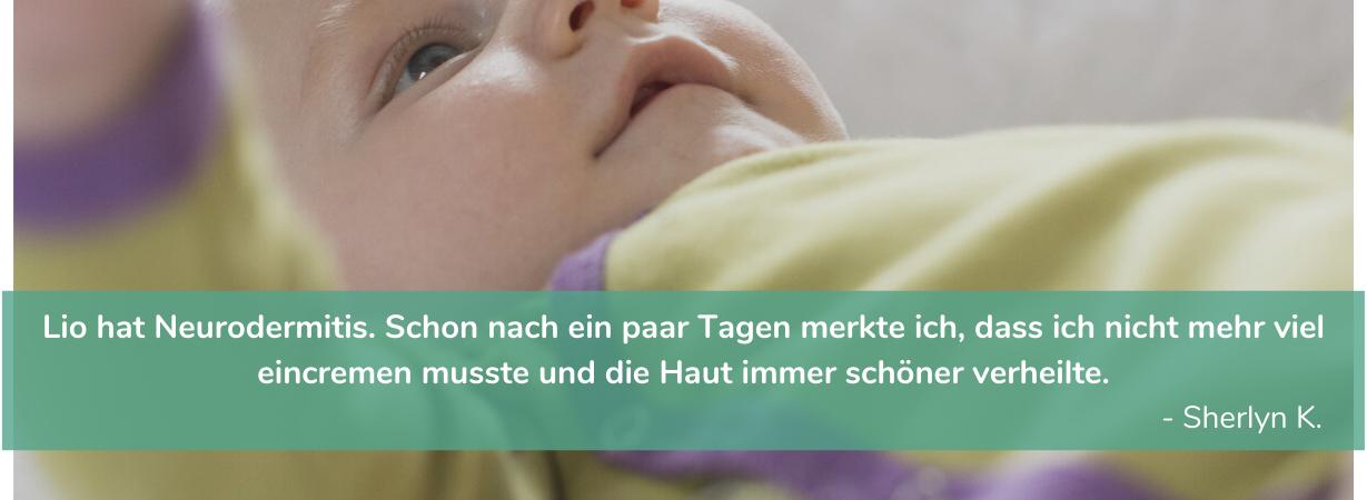 Babykleidung bei Neurodermitis_Atopische Dermatitis_Chill n Feel