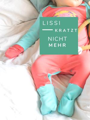 Neurodermitis Baby_Kratzschutz_Babykleidung bei Neurodermitis_Chill n Feel (2)