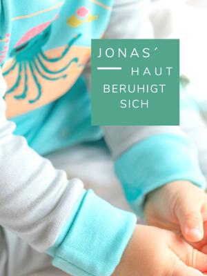 Neurodermitis Baby_Kratzschutz_Babykleidung bei Neurodermitis_Chill n Feel (3)